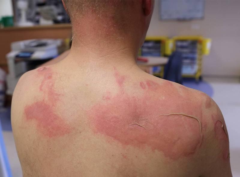 Bỏng da vấn đề thường thấy khi bị cháy nắng, cực kì gây hại cho da, những tổn thương có thể không lành